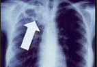 TB chest X-ray